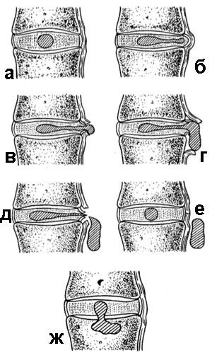 стадии образования дисковой грыжи
