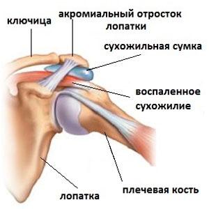 Повреждения суставов плеча лечение снимки суставов затылка