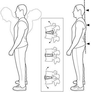 Упражнения Дикуля для спины при грыже шейного, поясничного и грудного отдела. Видео